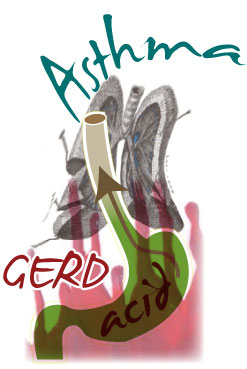 Reflux Disease (GERD), doesn't seem to be related asthma ...