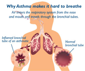 Why asthma makes it hard to breath