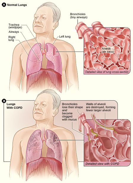 COPD Lung Function Diagram - NiH