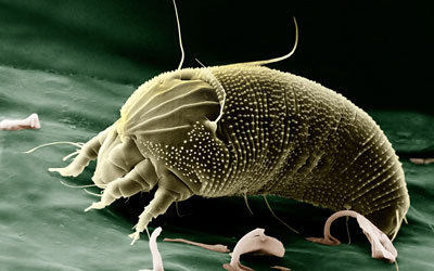 Image result for dust mites actual size